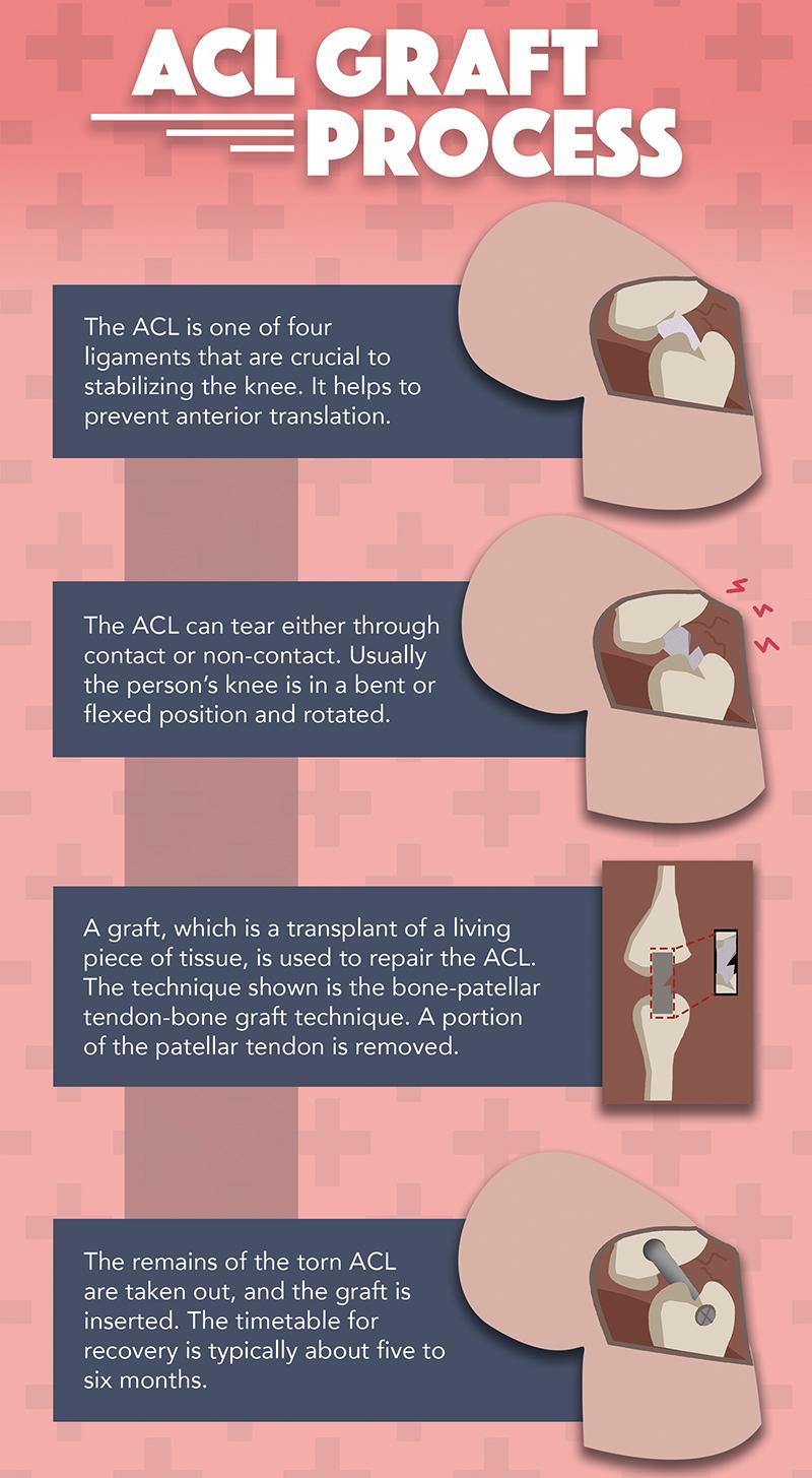 ACL Graft Process
